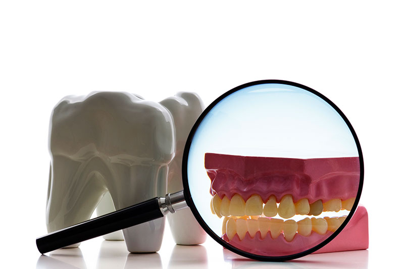 Root Canal in Ponchatoula