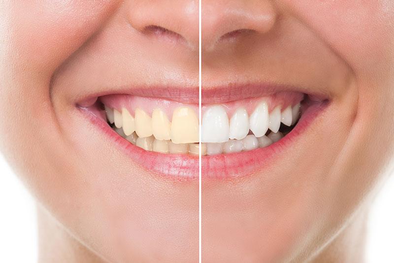 Teeth Whitening in Ponchatoula